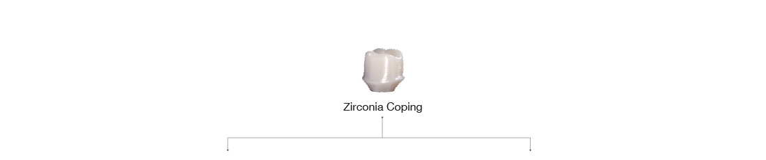 Zirconia Coping
