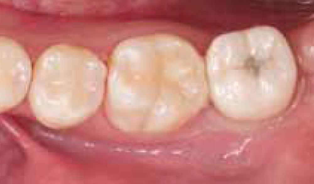 Single-molar-implant-with-bone-augmentation