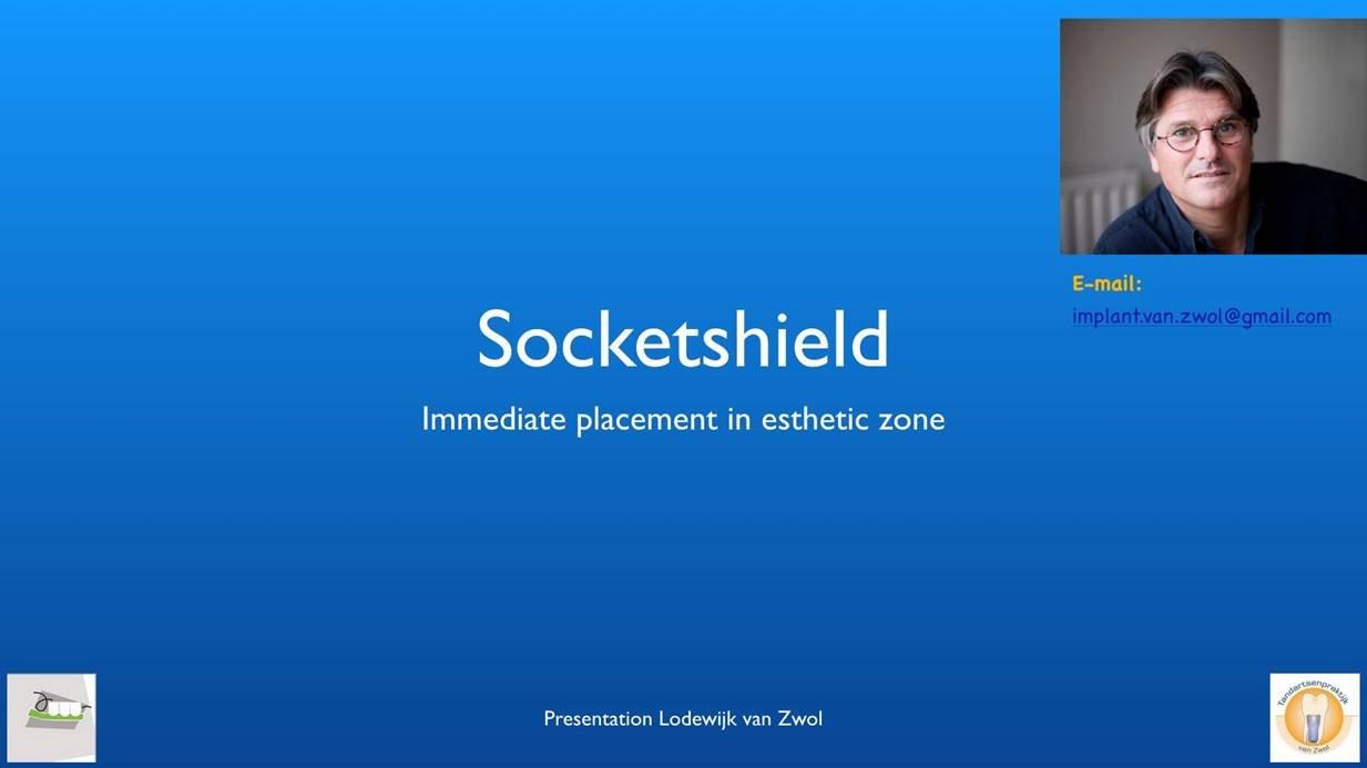 Socketshield Technique