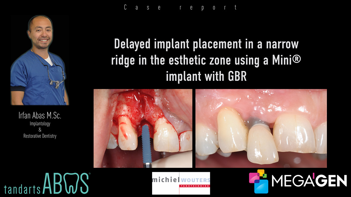 Delayed implant placement in a narrow ridge in the esthetic zone using a megagen Mini implant