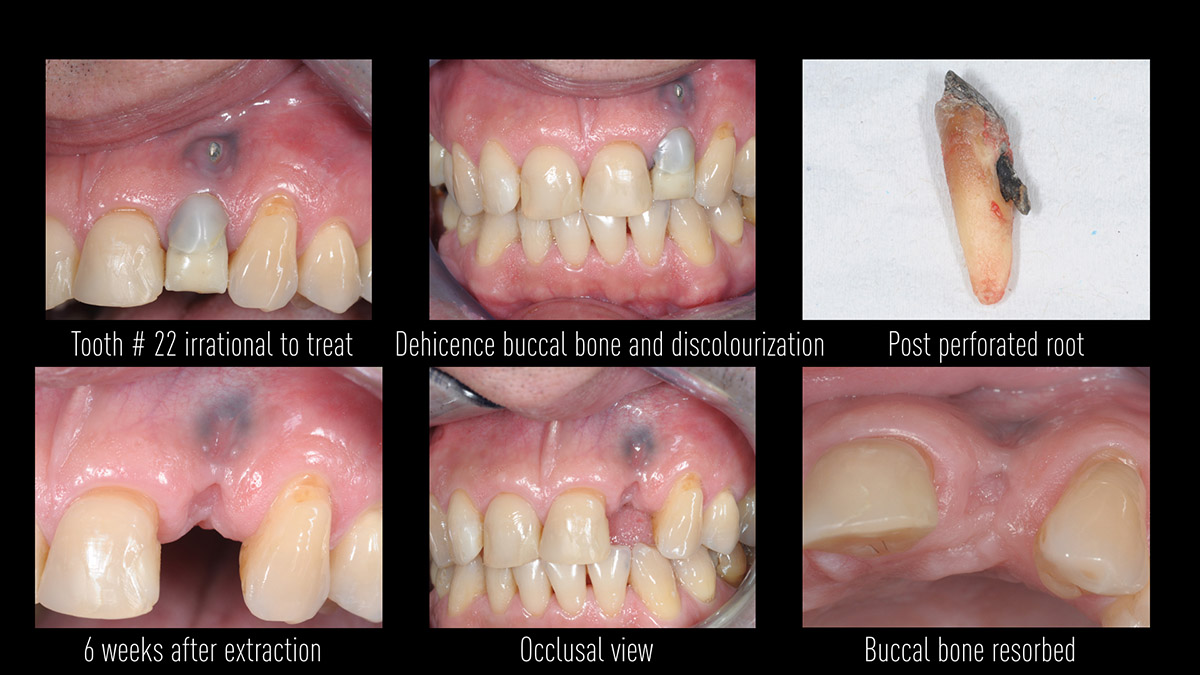 Early implant placement in the esthetic zone with GBR and