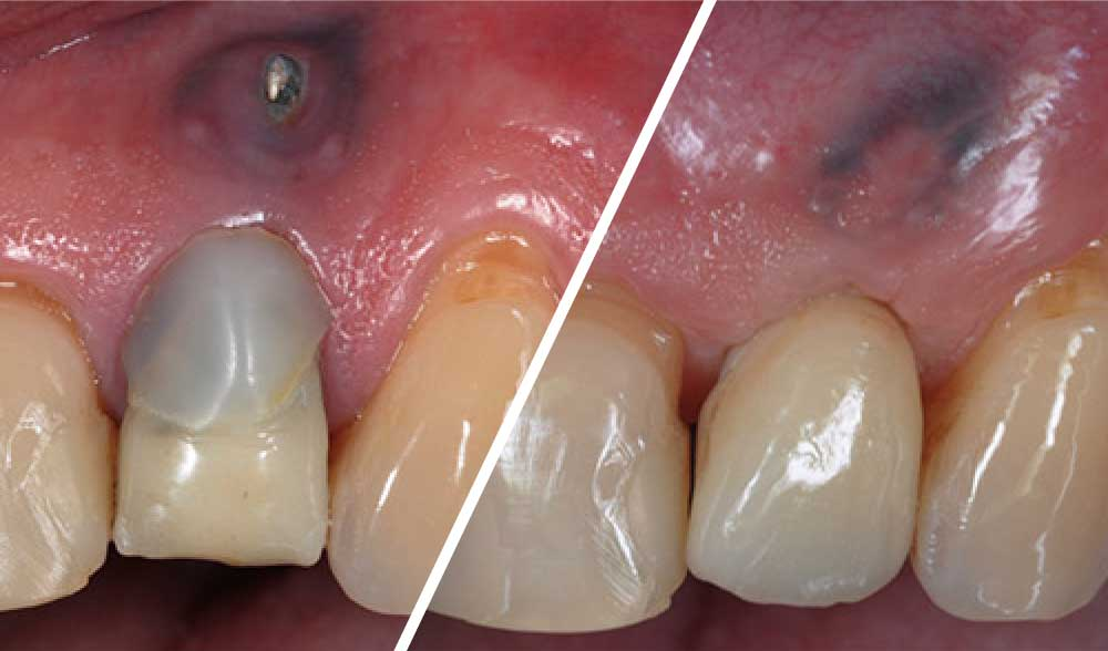 case-Early-implant-placement