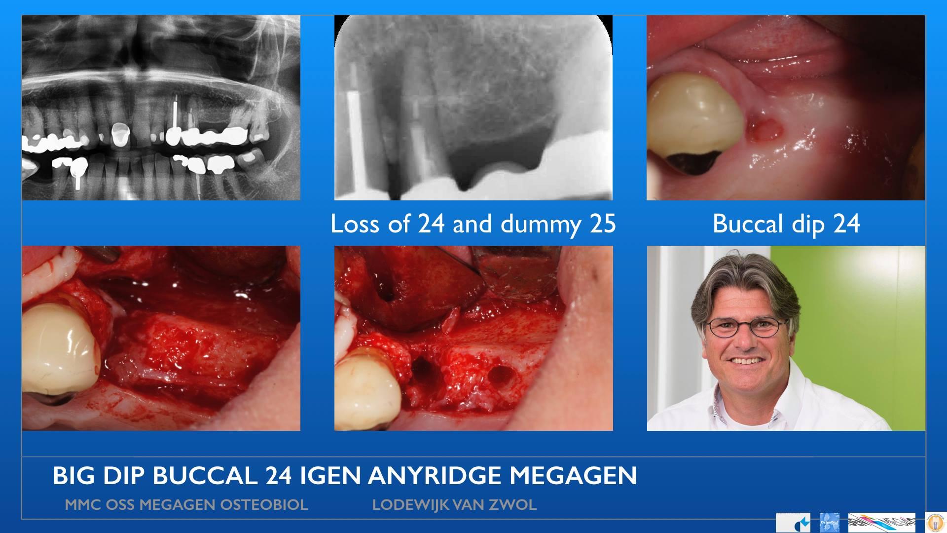 MegaGen AnyRidge with IGen icw OsteoBiol GenOs and Evolution