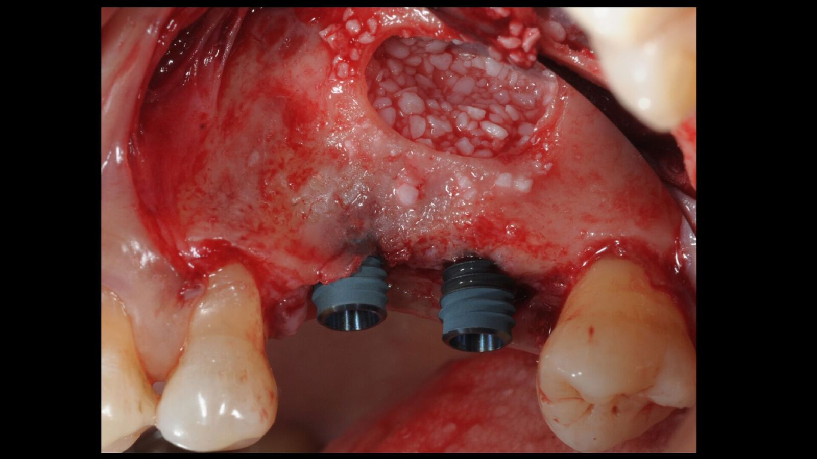 Sinus Floor Elevation And Implant Placement : Placement of anyridge implants with sinus floor