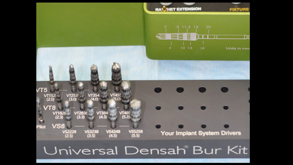 Crestal-sinusfloor-elevation-with-Densah-burs-and-implant-placement-without-the-use-of-biomaterials