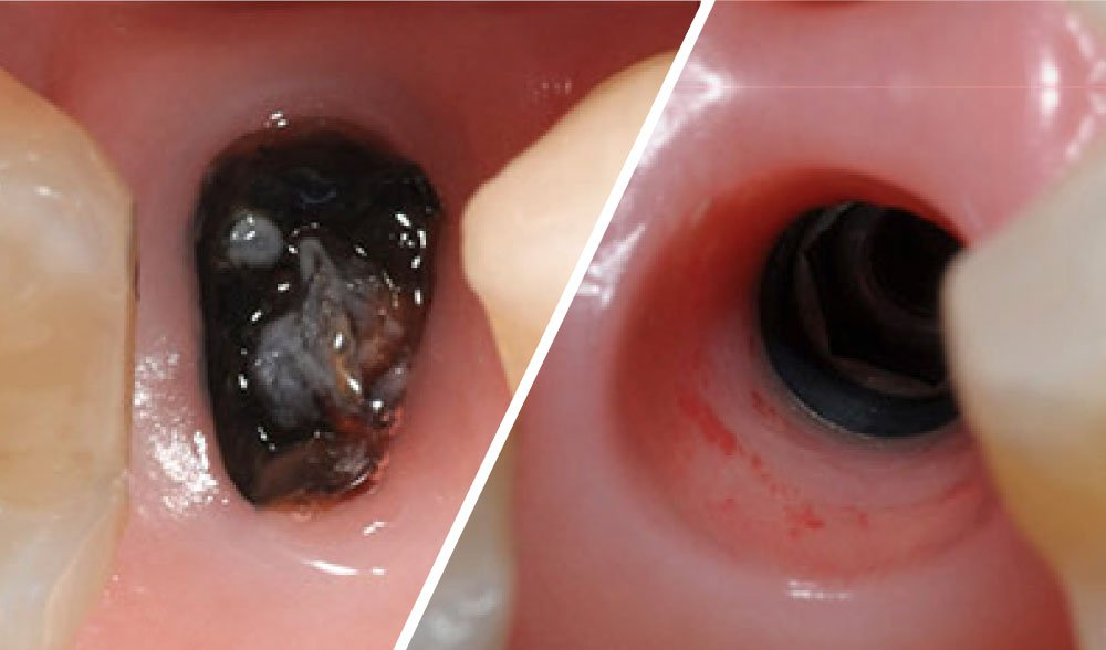 header-Immediate-implant-placement-with-GBR-1-stage-by-means-of-osseodensification