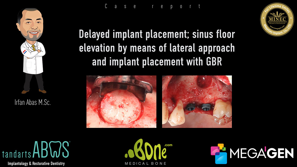 Sinus Floor Elevation And Implant Placement : Delayed implant placement sinus floor elevation by means